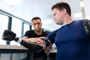 Imagen de una persona con discapacidad probando una prótesis articulada para su brazo derecho